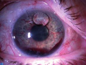 Hrubá rubeóza dúhovky so zakrvácaním na dne prednej komory (hyfémou). Oko pacienta po operácii odlúpenia sietnice, ktorá bola riešená tamponádou silikónovým olejom. Kvapka silikónového oleja prítomná v prednej komore (archív II. Očnej kliniky SZU).
