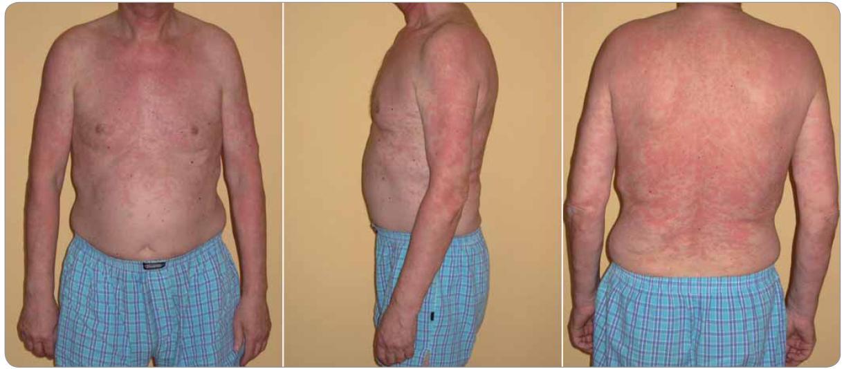 Typický nález kopřivkového exantému u Schnitzler-syndromu (případ 6).
