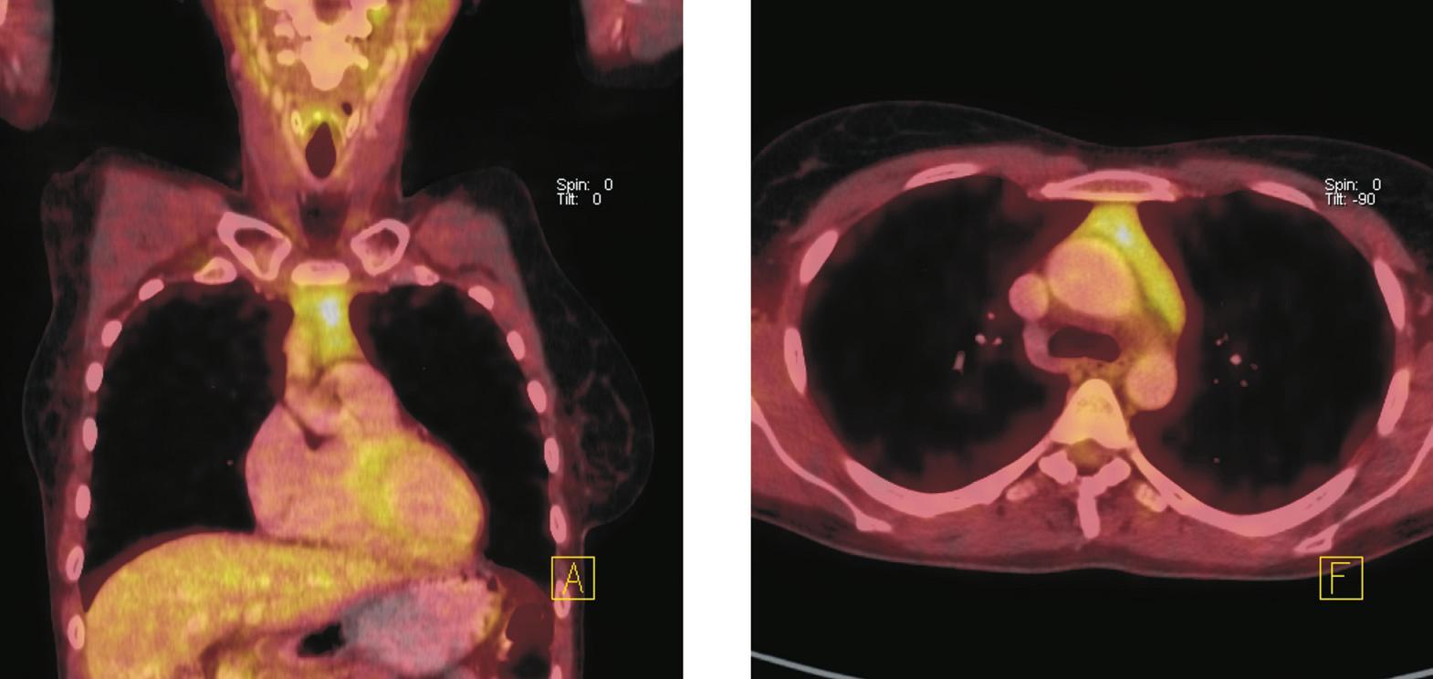 Fúze PET a CT řezů – koronální (vlevo), transverzální (vpravo). Zvýšená akumulace <sup>18</sup>F-FDG v měkkotkáňové struktuře horního předního mediastina, která nebyla patrná při vstupním vyšetření před zahájením imunochemoterapie. Velikost ani charakter popsané struktury se při pozdějším kontrolním vyšetření nezměnily. Nález hodnocen jako aktivace tkáně thymu po chemoterapii.