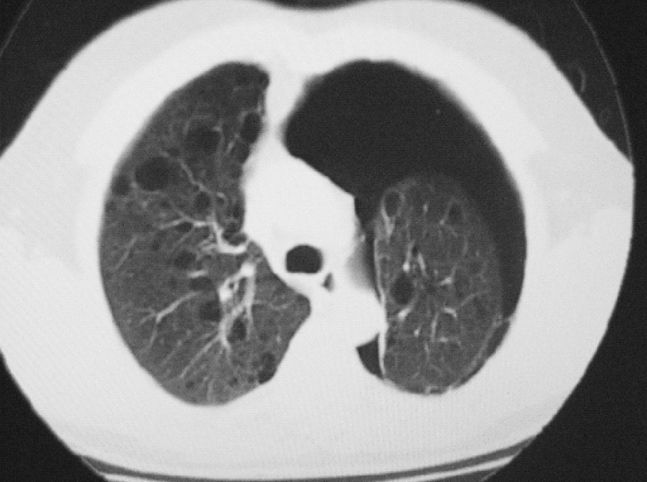 HRCT plic – oboustranný bulózní emfyzém, levostranný PNO Fig. 3. HRCT lung scan – bilateral bullate emphysema, left – sided PNO