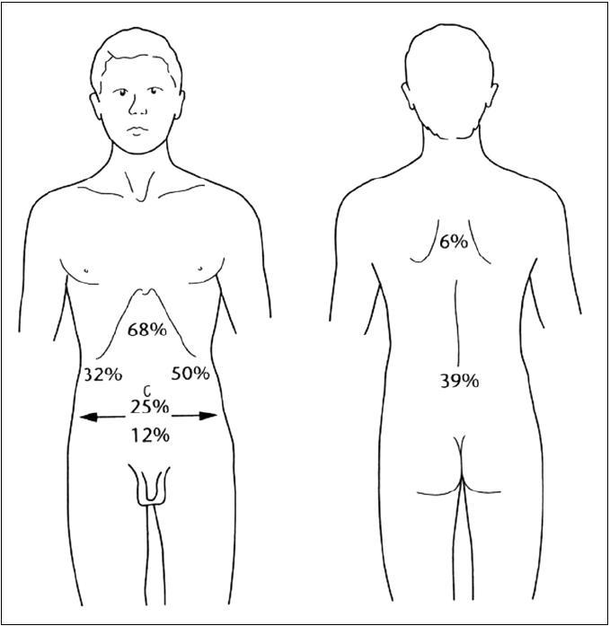 Propagace pankreatické bolesti dle Lankische (2004).