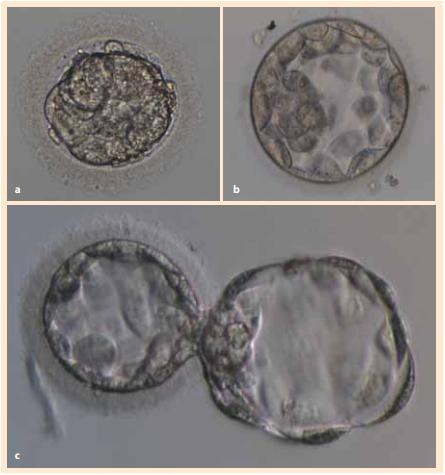 Příprava darovaných embryí před izolací embryoblastu a následnou  kultivací buněčné linie hESC: a) embryo po rozmrazení ve stadiu moruly,  b) blastocysta po dokultivování, c) blastocysta s provedeným asistovaným  hatchingem.<br> Fig. 1. Preparation of donated embryos before embryoblast isolation and subsequent cultivation of the hESC cell line: a) embryo after thawing in the morula  stage, b) blastocyst after recultivation, c) blastocyst with assisted hatching.