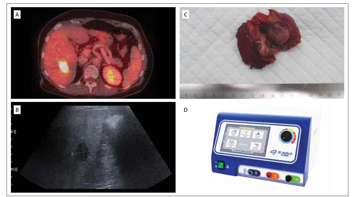 (A) Jaterní metastáza na PET CT (18FDG); (B) Peroperační ultrazvukové zobrazení jaterní metastázy; (C) Jaterní metastáza maligního prolaktinomu; (D) RFA sonda užívaná na našem pracovišti<br> FDG – fludeoxyglukóza; RFA – radiofrekvenční ablace<br> Fig. 2. (A) Liver metastasis on PET/CT (18FDG); (B) Intraoperative ultrasound of the liver metastasis; (C) Liver metastasis of malignant prolactinoma; (D) RFA probe used in our department<br> FDG – fluorodeoxyglucose; RFA – radiofrequency ablation