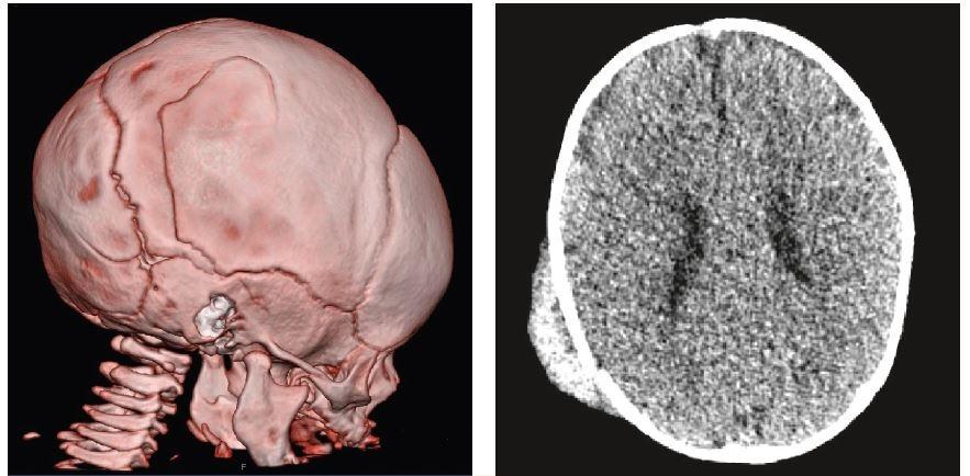 Hematom podkoží a fisura kalvy bez intrakraniální hemorhagie. Pětiměsíční kojenec po pádu z kočárku na beton. Po úrazu bez poruchy vědomí, bez alterace stavu. Lokálně velký fluktuující hematom, topický neurologický nález v normě. Oční vyšetření s normálním nálezem, krevní obraz bez anemizace. Sonografické vyšetření nebylo provedeno, indikované CT vyšetření s impresivní frakturou bylo bez nálezu intrakraniální hemorhagie. <br>Fig. 1a, b. Subcutaneous haematoma and skull fissures are without intracranial haemorrhage. A five-month-old infant after falling from a pram on a concrete surface. After the accident, no disturbances of consciousness or alterations of the patient´s condition. Locally, a large fluctuating haematoma; normal topical neurological findings. Ophthalmologic examinations with normal findings; blood counts without anemization. The sonographic examination was not performed; the indicated CT scan with an impressive fracture did not show intracranial haemorrhage.