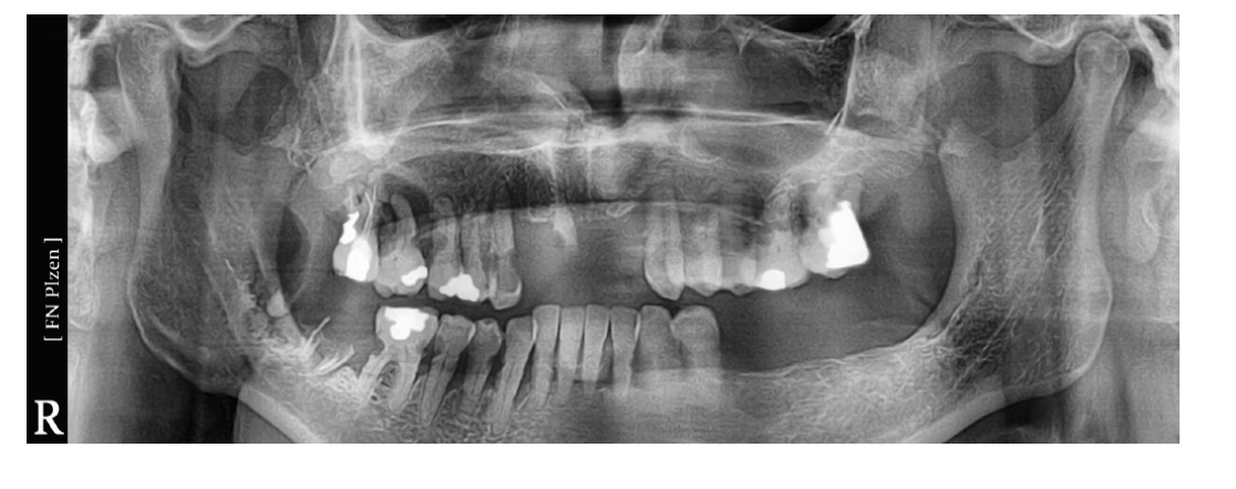 OPG pacienta, kde byly indikovány všechny přítomné zuby k extrakci<br> Fig. 2 OPG of the patient, where all teeth present were iniciated for extraction