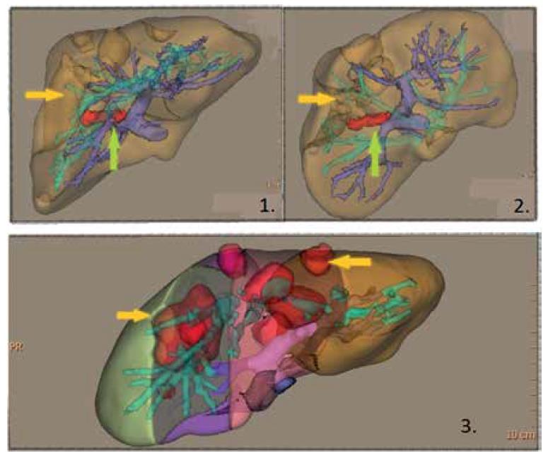 """1,2 – 3D rekonstrukce jater s """"červenou"""" obliterovanou portální větví (zelená šipka) pro segment V a VIII; změna sycení parenchymu (žlutá šipka); 3 – 3D volumetrie, červená ložiska označují nefunkční parenchym (žluté šipky)<br> Fig. 2. 1,2 – 3D reconstruction of the liver with """"red"""" occluded portal branch (green arrow) for segments V and VIII; parenchymal hypoperfusion (yellow arrow); 3 – 3D volumetry, red lesions simulating nonfunctional liver parenchyma (yellow arrows)"""