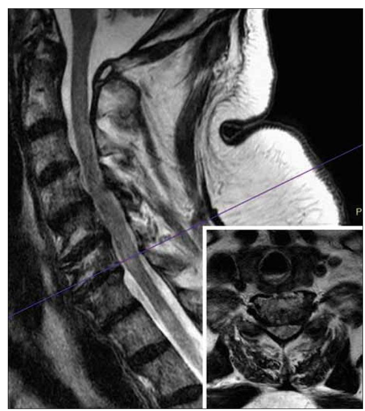 MR. Sagitální T2-vážené obrazy krční míchy.<br> Přes pohybové artefakty jsou v krční míše viditelné hypersignální oblasti T2 odpovídající myelitidě. Fialová čára ukazuje rovinu příčného řezu, která byla následně znovu dokončena v T2-váženém obrazu (viz malý obrázek v pravém dolním rohu). Tento příčný řez ukazuje hypersignální oblast v pravé polovině míchy.<br> Fig. 1. MRI. Sagittal T2-weighted images of the cervical spinal cord.<br> Despite motion artifacts, T2 hypersignal areas corresponding to myelitis are visible in the cervical spinal cord. The purple line shows the plane of the transverse section, which was subsequently completed again in T2-weighted image (see small figure in the right lower corner). This transverse section shows a hypersignal area in the right half of the spinal cord.