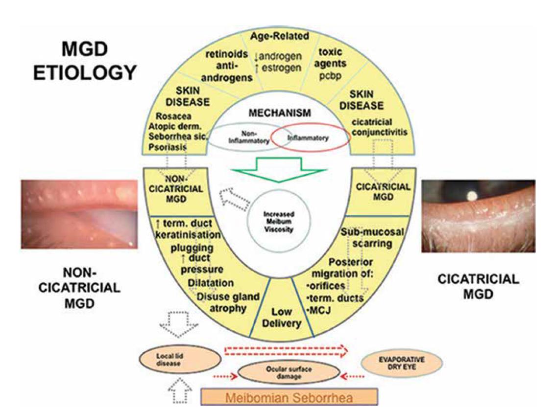 Patofyziologie MGD – TFOS DEWS II REPORT [2]
