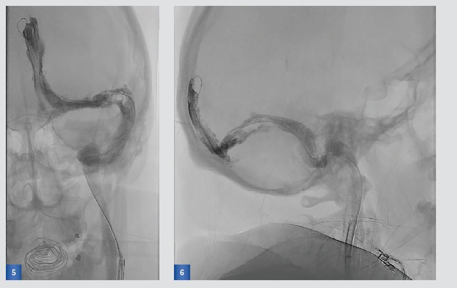 obr. 5 a 6 Angiografie prokazující obnovený tok ve splavech po několika pasážích stent-retrieveru a aspiracích rozmělněných trombů aspiračním katétrem v předozadní a boční projekci. V sinus transversus je patrný přetrvávající defekt, který může být podmíněn Pacchioniho granulací.