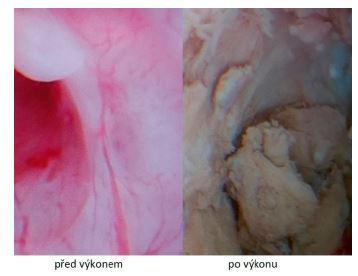 Hysteroskopické vizuální srovnání endometria těsně před výkonem a po jeho ošetření radiofrekvenční ablací