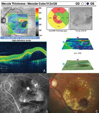 Finding of polypoid choroidal vasculopathy