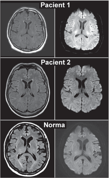 MR mozku pacientů s encefalopatií