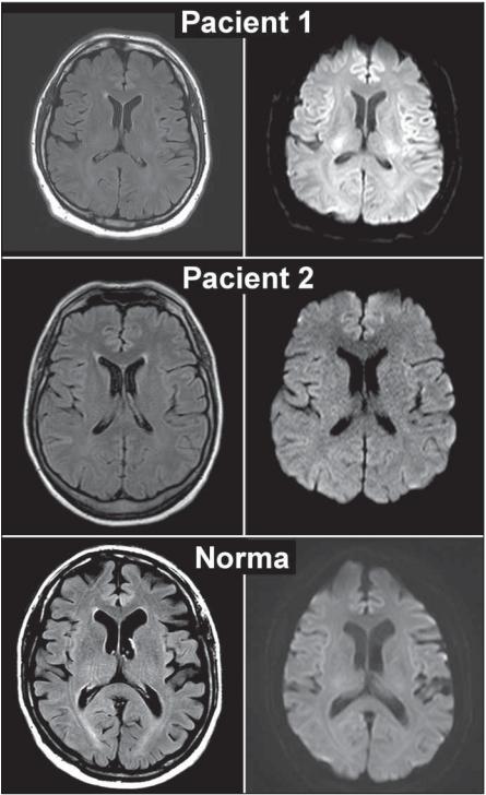 MR mozku pacientů s encefalopatií a normální kontroly<br> Fig. 1. MRI scans of encephalopathic patients and normal control.
