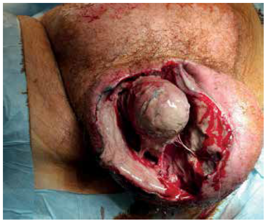 Peritestikulární nekróza s nekrózou pravého varlete<br> Fig. 3. Peritesticular and right testicular necrosis