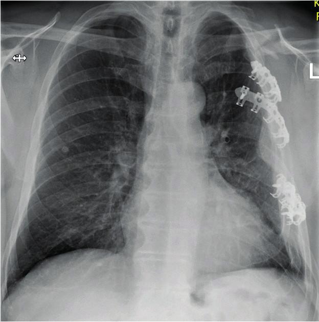 a: Defigurace ramenního pletence a hemitoraxu vlevo při neošetření zlomeniny klíčku, doprovázející mnohočetnou zlomeninu žeber. Pacient trpí těžkým omezením hybnosti horní končetiny