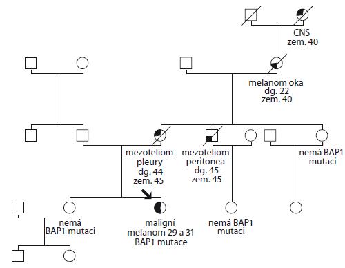 Rodokmen rodiny č. 1.<br> CNS – centrální nervová soustava, zem. – zemřel ve věku, dg. – diagnostikován ve věku