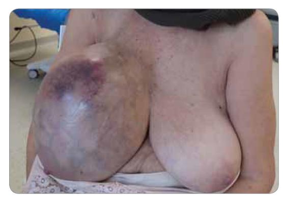 Pacientka neschopná chůze, přivezena na sedačce k lékařskému vyšetření.