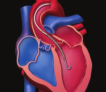 Systém Impella 2.5. Mikroaxiálna pumpa je uložená cez aortálnu chlopňu a prečerpáva krv z dutiny ľavej komory do aorty.