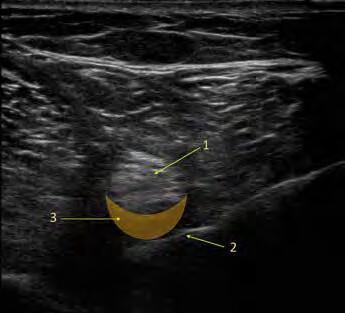Low volume distal sciatic block. Na UZ obrázku ischiadického nervu je žlutou barvou znázorněna oblast distribuce lokálního anestetika při LVDS bloku. 1. ischiadický nerv, 2. jehla, 3. oblast distribuce lokálního anestetika.