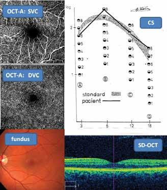 Fyziologický nález tří neinvazních vyšetřovacích metod: CS, SD-OCT, OCT-A (povrchový/hluboký vaskulární segment – SVC/DVC) a fotografie fundu