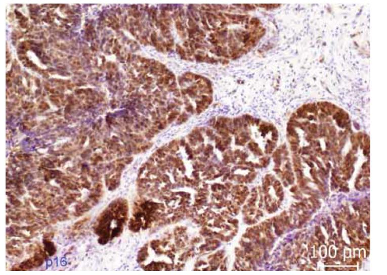 Imunohistochemická exprese p16. Difuzní cytoplazmatická i nukleární exprese p16 (tzv. bloková pozitivita) v nádorovém epitelu.<br> Fig. 4. Immunohistochemical expression of p16. Diffuse cytoplasmic and nuclear expression of p16 (so-called block positivity) in tumor epithelium.