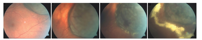 Rozvoj známek toxic tumor syndromu po ošetření velkého melanomu pomocí LGK