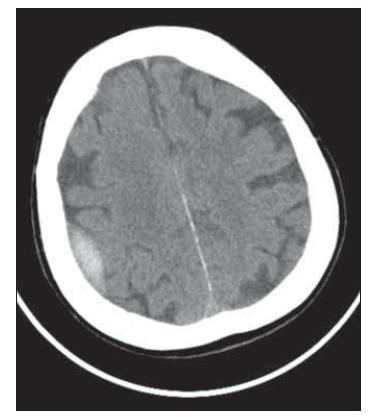 Fig. 3. Brain CT, axial scan. Adult patient with epidural hematoma – conservative therapy.<br> Obr. 3. CT mozku, axiální řez. Dospělý pacient s epidurálním hematomem – konzervativní postup.