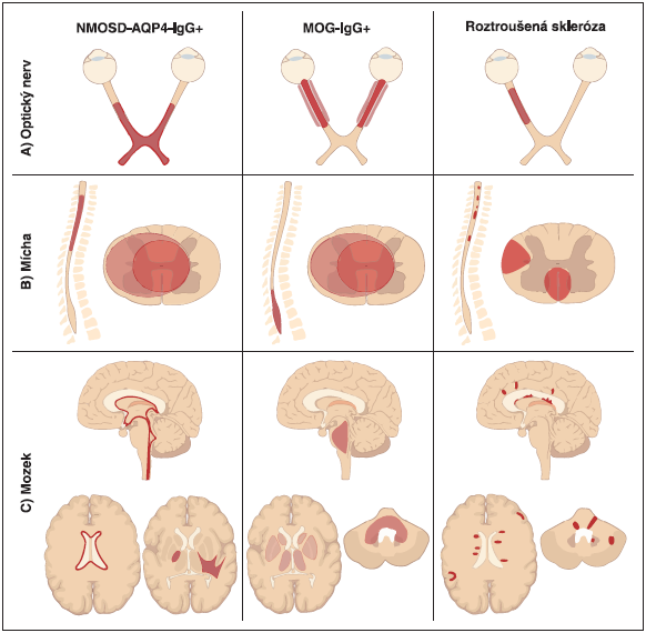 Schéma charakteru ložisek na MR diskriminující AQP4-IgGpozNMOSD, MOG-IgGpozNMOSD a RS (adaptováno z [8]).<br>