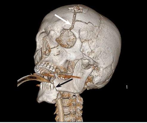 3D rekonstrukce lbi pacienta po střelném poranění. Obrázek znázorňuje devastační poranění skeletu po suicidálním pokusu. Pacient se poranil zbraní přiloženou pod bradu, následný výstřel způsobil dislokovanou zlomeninu dolní čelisti (černá šipka). Bílá šipka ukazuje na frakturu čelní kosti v kontinuitě s výstřelem pokračující přes orbitu do horní čelisti.<br> Fig. 3. 3D skull reconstruction of the patient after a gunshot wound. The picture shows a devastating injury of the skull. The suicidal patient put the gun behind the mental tubercle of the mandible and shot. The bullet exited from the frontal bone. The mandible (black arrow) and the frontal bone were shattered by the impact of the shot. The biggest fracture of the frontal bone (white arrow) spreads from the bullet exit through the orbit to the maxilla.