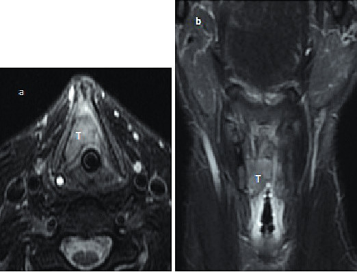 (MRI) a)The larynx b)The larynx - coronary T2 weighted image with decreases signal-to-noise of fat tissue. The MR images show tumor mass expansive (T) in the right side of the larynx and anterior comissure ( no infiltrative growing into thyroid cartilage) .- axial T2 weighted image with decreases signal-to-noise of fat tissue.
