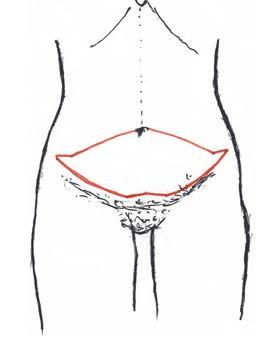 Obr. 1 Rozsah odstranění kožního převisu při základní abdominoplastice