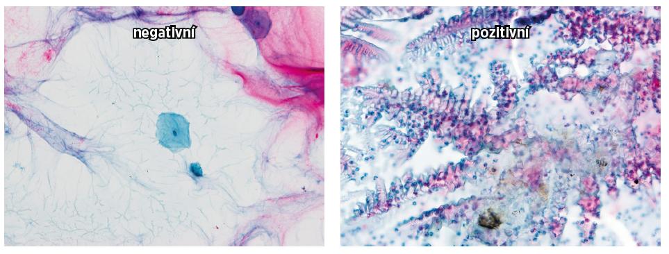 Cervikální ovulační sekret a denzita NK buněk CD 16+
