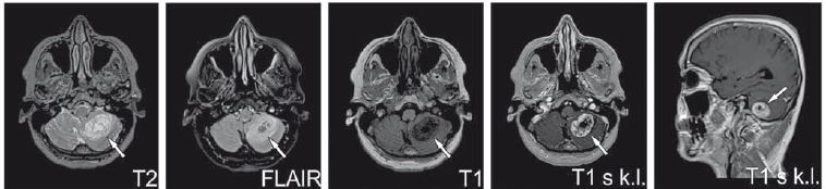 Recidiva tumoru v mozečku.