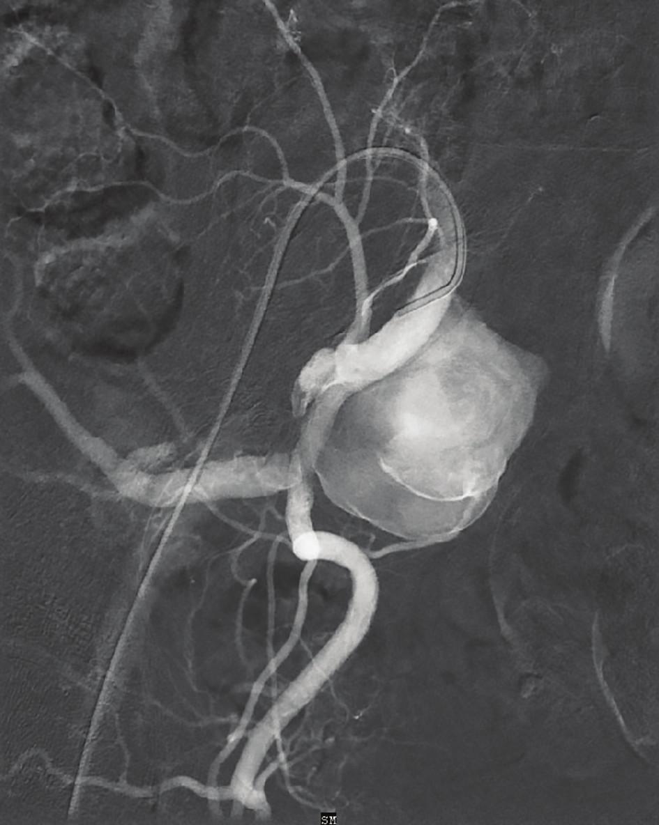 Digitální subtrakční angiografie – vak aneuryzmatu v odstupu a.glutea superior<br> Fig. 2: Digital subtraction angiography – hypogastric artery aneurysm on the level of the superior gluteal artery