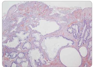 Juvenilní polyp tračníku – povrchová eroze, edematózní proprie se zánětlivou infi ltrací, mikrocysty s výstelkou tvořenou normálními enterocyty a pohárkovými buňkami sliznice colon, bez dysplazie.