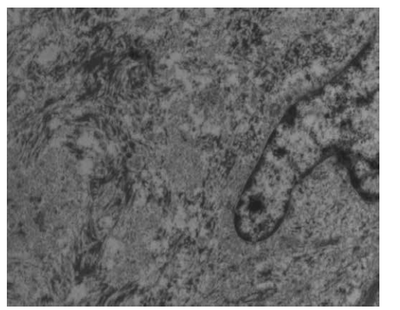 Pohled do nitra gaucherovy buňky v elektronovém mikroskopu s průkazem intraplazmatického vláknitého materiálu.