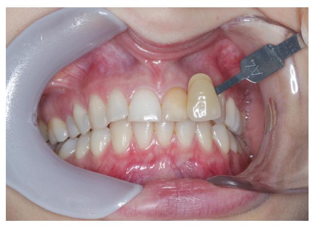 Zub zafarbený zinkoxideugenolovým sealerom<br> Fig. 1 Tooth discolored by zinc-oxide eugenol based sealer