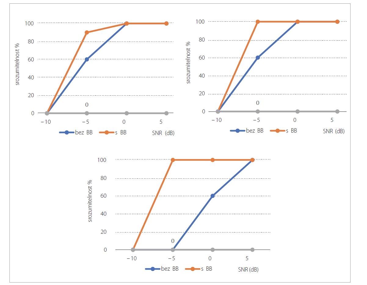 Grafické znázornění srozumitelnosti větám (55 dB SPL) v hovorovém šumu při různých hodnotách SNR u pacientů P1, P2, P3.<br> Graph 4. Graphical presentation of sentence intelligibility (55 dB SPL) in speech noise at different SNR values in patients P1, P2, P3.