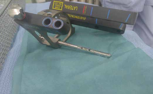 Sestavený cílič s hřebem C-Nail