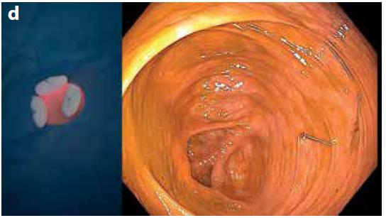 Obr. 2d. Fixační stehy na tamponech (vlevo); koloskopický pohled na kotvicí systém (vpravo)<br> Fig. 2d. Fixation sutures on tampons (left); colonoscopic view of the anchor system (right)