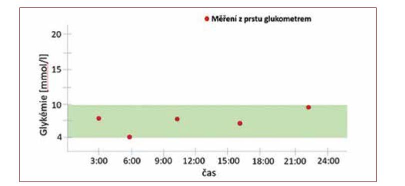 Glykemický profil vytvořený ze změřených glykemií z kapilární krve pomocí osobního glukometru