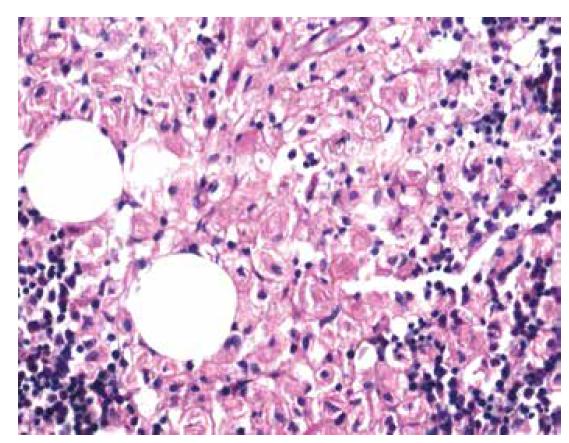 Histochemické barvení PAS s pozitivitou gaucherových buněk (zvětšení 200x).