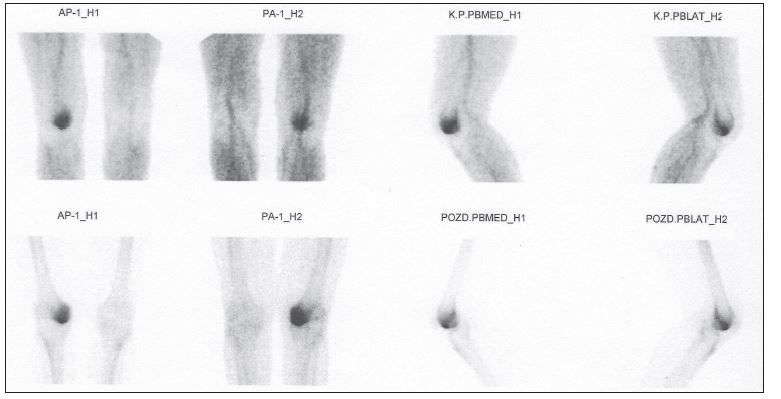 Třífázová scintigrafie u časného stádia osteonekrózy (I). Horní řada obrazy krevního poolu. Dolní řada statické scany v předozadní a boční projekci.