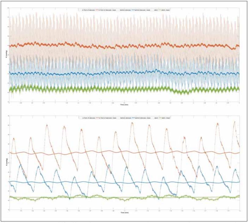 Pětiminutové záznamy tlaků v oblasti nad místem stenózy (červená), pod místem stenózy (modrá) a v místě stentu po jeho implantaci (zelená), zvýrazněny jsou střední hodnoty tlaků.<br> Fig. 2. Five-minute recordings of pressures in the area above the stenosis (red), below the stenosis (blue) and at the stent site after implantation (green), the mean pressure values are highlighted.