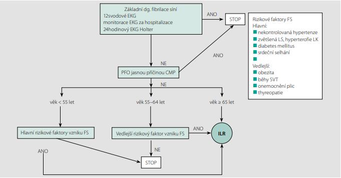 Schéma 2. Algoritmus pro diagnostiku fibrilace síní (upraveno dle 11)