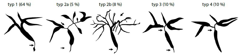 Klasifikace IgG4 asociované cholangitidy na základě cholangiogramu (převzato z Nakazawa et al. 2006)(66)