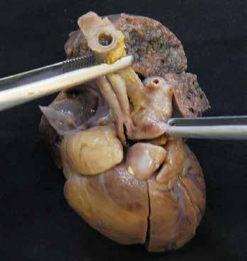 Interrupce aortálního oblouku. U levé pinzety patrná ascendentní aorta s odstupem pravostranné a. subclavia a a. carotis communis, u pravé pinzety pak truncus pulmonalis, pokračující přes ductus arteriosus v descendentní aortu.