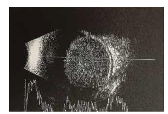 Kontrolní ultrazvuk – rozsáhlá prominující léze v obou temporálních kvadrantech s nízkou homogenní echogenitou, bez kalcifikací