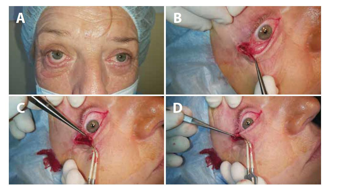 (A) Ektropium pravého oka - stav před operací, (B) kantotomie, kantolýza, (C) rozdělení zevní části víčka na přední a zadní lamelu, (D) obnažený proužek tarzu