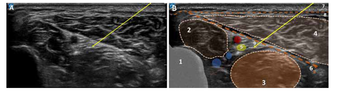 Ultrazvukový obraz vnitřní strany dolní třetiny bérce. A. nativní obraz, šipka ukazuje směr a umístění jehly pro blokádu n. tibialis. B. kolorovaný obraz: 1. tibie, 2. m. flexor digitorum longus, 3. m. flexor halucis longus, 4. m. triceps surae, 5. n. tibialis v neurocévním svazku, 6. ligamentum collaterale, 7. povrchní fascie, 8. hluboká fascie, 9. šipka míří na místo počátku aplikace LA